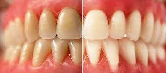 Diş Tartarı Nedir ve Nasıl Tedavi Edilir 2