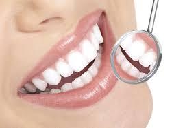Diş Tartarı Nedir ve Nasıl Tedavi Edilir 3