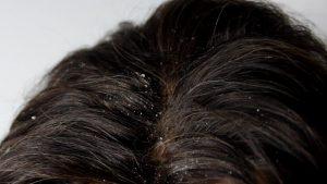 Saç Kepeğinin Sebebi Nedir Tedavisi Nasıl Yapılır 1