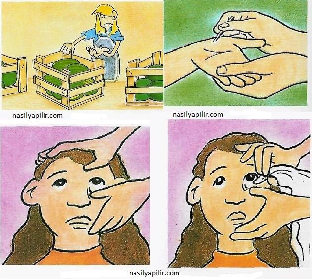 Vücuda Yabancı Cisim Battığında Neler Yapılmalı 2