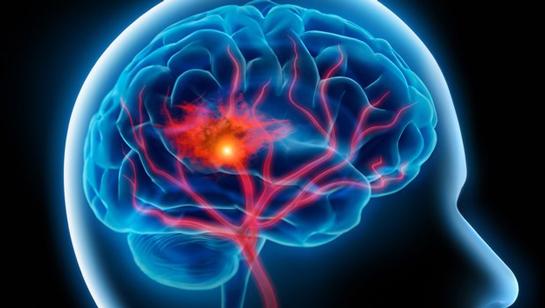 beyin-tansiyonu