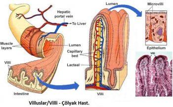 colyak-hastaligi-nedir-ve-belirtileri-nelerdir-4