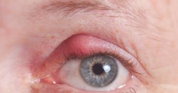 kirpik-dibi-iltihabi-nedir-ve-nasil-tedavi-edilir-2