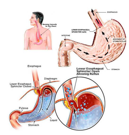 mide-yanmasi-mide-eksimesinin-nedenleri-1