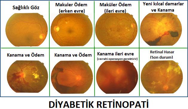 diyabetik-retinopati-nedir-ve-tedavisi-nasil-yapilir-1
