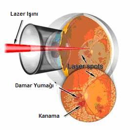 diyabetik-retinopati-nedir-ve-tedavisi-nasil-yapilir-5