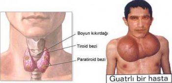 guatr-nedir-belirtileri-nelerdir-ve-tedavisi-nasil-yapilir-1