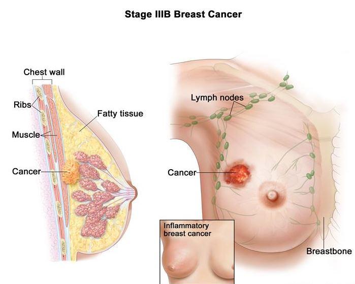 meme-kanseri-nasil-tespit-edilir