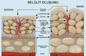 selulit-olusumunu-onlemek-icin-organik-tedaviler-nelerdir-5